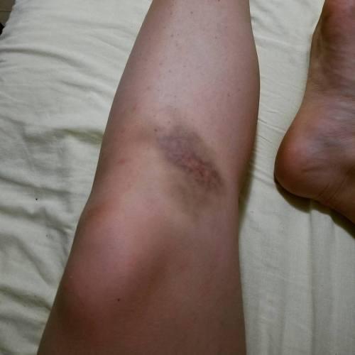 Bruise Fiji